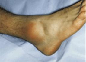 Sintomi Distorsione della Caviglia