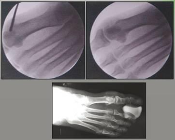 rx piede intervento chirurgico percutanea